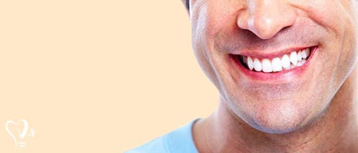 لبخند هالیوودی و همه آنچه که باید بدانید21