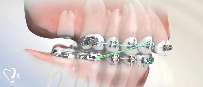 کشیدن دندان عقل و نکات مهم آن5