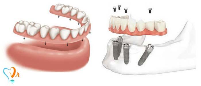 معایب و عوارض ایمپلنت دندان چیست؟ -  ثابت نگه داشتن دندان مصنوعی