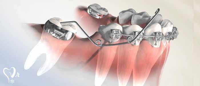 کشیدن دندان عقل و نکات مهم آن6