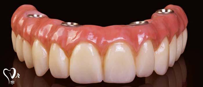 مزایای ایمپلنت دندان چیست؟ - ایمپلنت پیچ دار