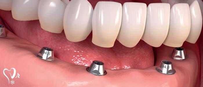 مزایای ایمپلنت دندان چیست؟ -  کاشت ایمپلنت دندان