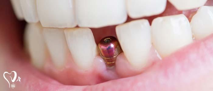 مزایای ایمپلنت دندان چیست؟ - تثبیت و نگهداری استخوان