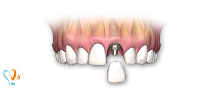 ایمپلنت های تک دندانی