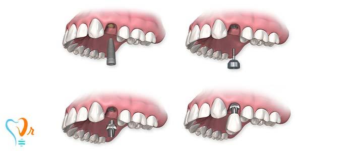 مزایای ایمپلنت تک دندانی