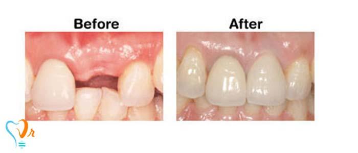 مزایای ایمپلنت تک دندان