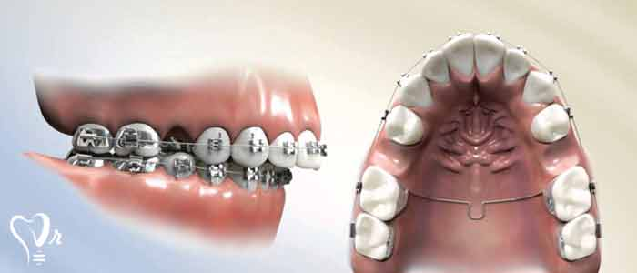 کشیدن دندان عقل و نکات مهم آن9