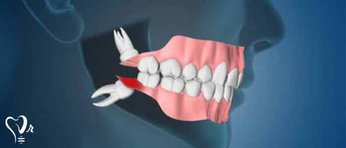 پوسیدگی در دندان عقل