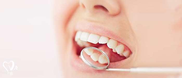 پوسیدگی دندان شایعه ترین مشکل در بیماران
