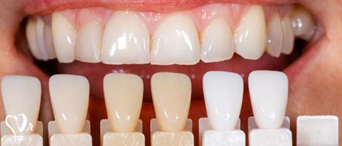 قیمت کامپوزیت دندان - عکس کامپوزیت دندان