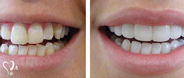 قیمت کامپوزیت دندان - معایب پرسلن ونیر