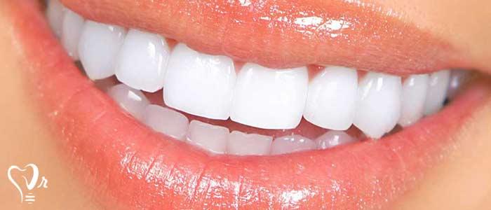 قیمت کامپوزیت دندان  - انواع کامپوزیت دندان
