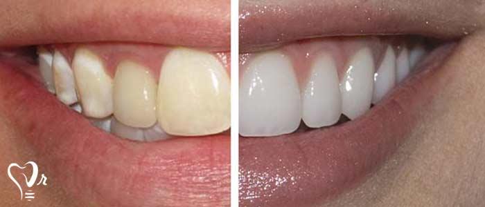 قیمت کامپوزیت دندان - تغییر رنگ کامپوزیت دندان