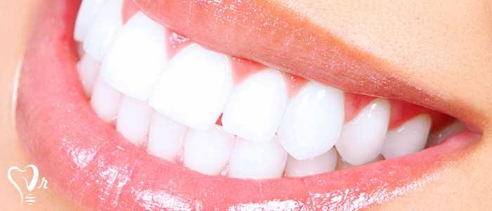 طراحی اصلاح طرح لبخند