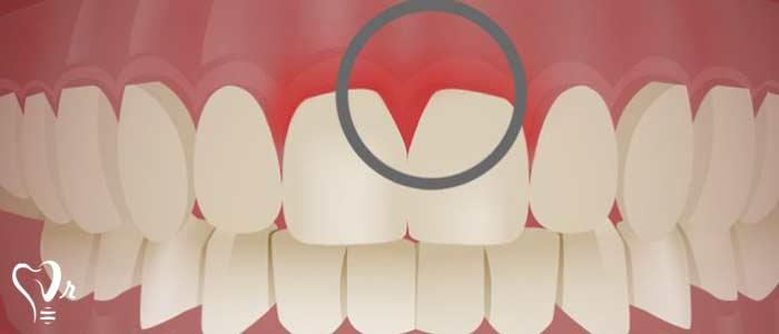 جرم گیری و تمیز کردن دندانها