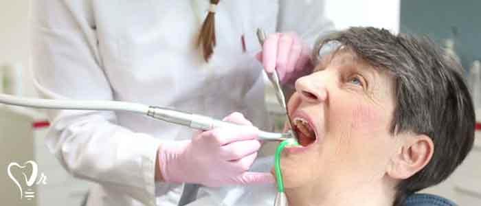 کشیدن دندان عقل و نکات مهم آن8