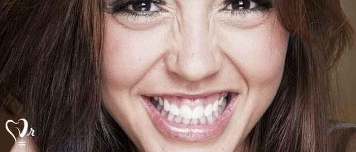 تشخیص و درمان لبخند