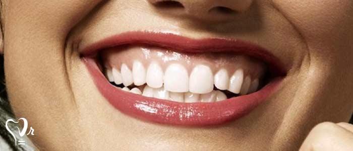 دندانپزشکی با لیزر