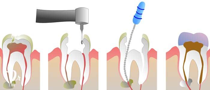 عصب کشی دندان - اطاق پالت