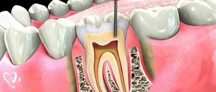 عصب کشی دندان - متخصص درمان ریشه