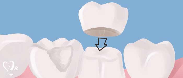 ترمیم دندان - روکش کردن دندان ها