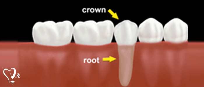 ترمیم دندان - Post