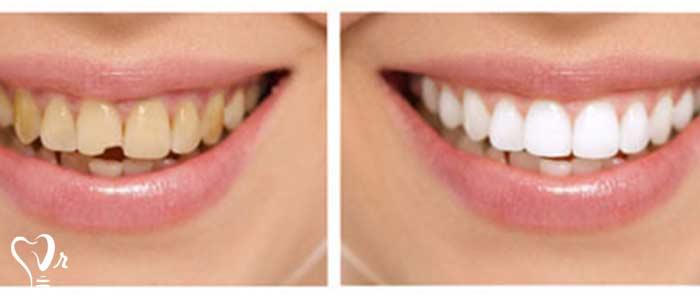 ترمیم دندان - کامپوزیت