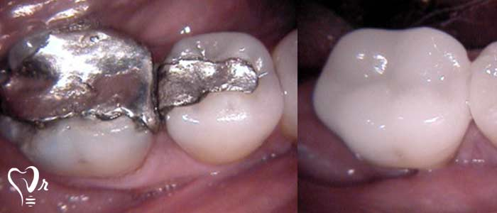 ترمیم دندان - ترمیم آمالگام