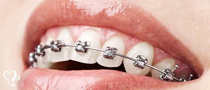 ترمیم دندان - ارتودنسی