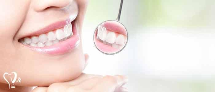 کاشت نگین دندانی 5