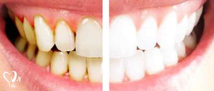 جرم گیری دندان و نکات مهم آن4