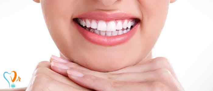 جرم گیری دندان و نکات مهم آن3