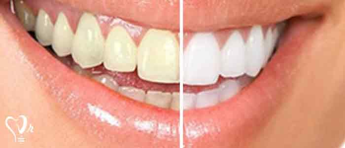 جرم گیری دندان و نکات مهم آن - دندان هایی زرد رنگ و جرم گرفته