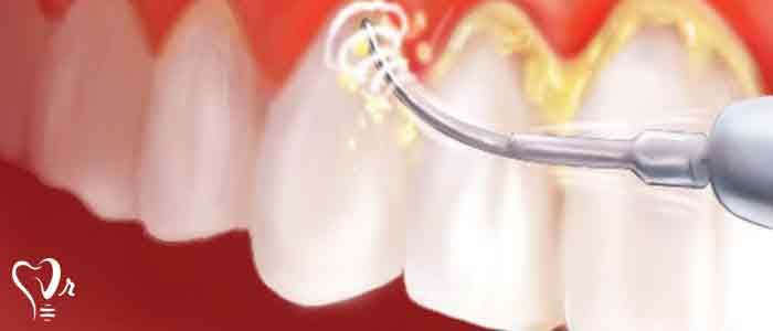 جرم گیری دندان و نکات مهم آن6