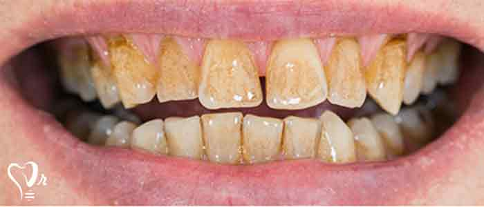 جرم گیری دندان و نکات مهم آن12
