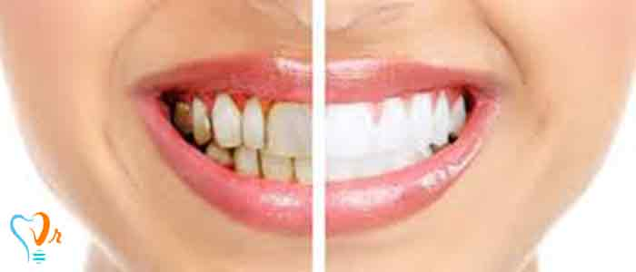 جرم گیری دندان و نکات مهم آن8