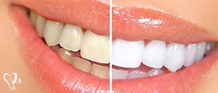 جرم گیری دندان و نکات مهم آن - روش جرم گیری دندان در خانه