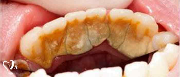 جرم گیری دندان و نکات مهم آن - جرم گیری دندان چیست؟