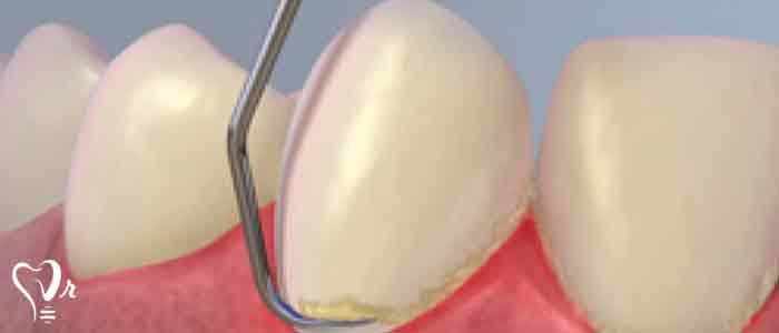 جرم گیری دندان و نکات مهم آن16