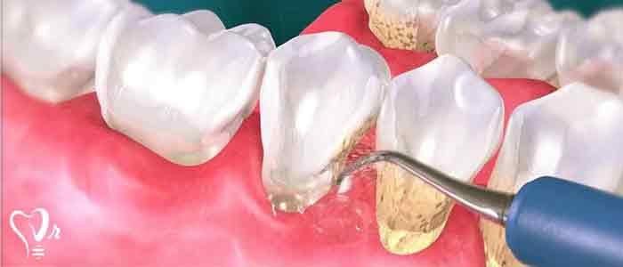 جرم گیری دندان و نکات مهم آن - جرم گیری دندان