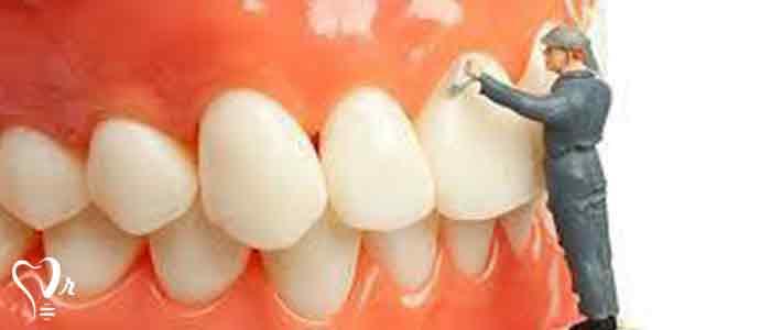 جرم گیری دندان - جرم گیری