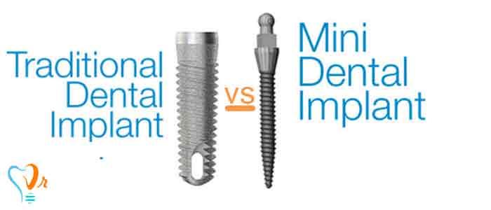 تفاوت مینی ایمپلنت و ایمپلنت دندان معمولی چیست؟