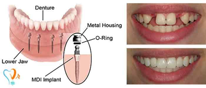 مینی ایمپلنت دندان برای دندان مصنوعی کامل یا پارسیل (نیمه)