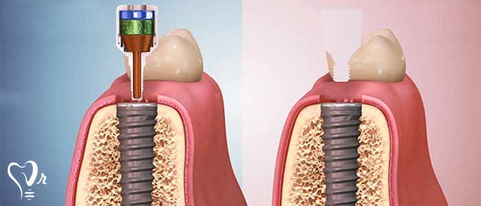 مراحل جراحی ایمپلنت  - مراحل سوم کاشت دندان
