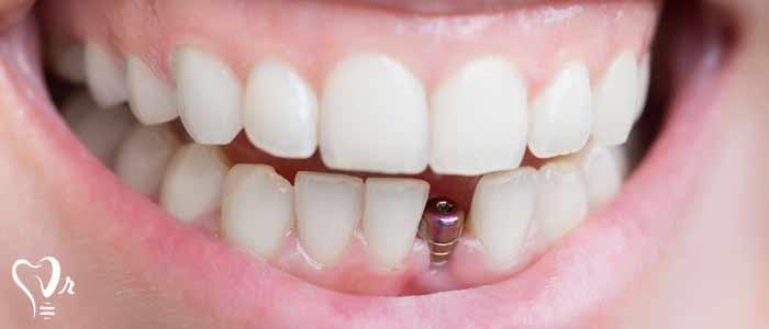 کاشت ایمپلنت دندان - پیوند استخوان برای ایمپلنت دندان چیست؟