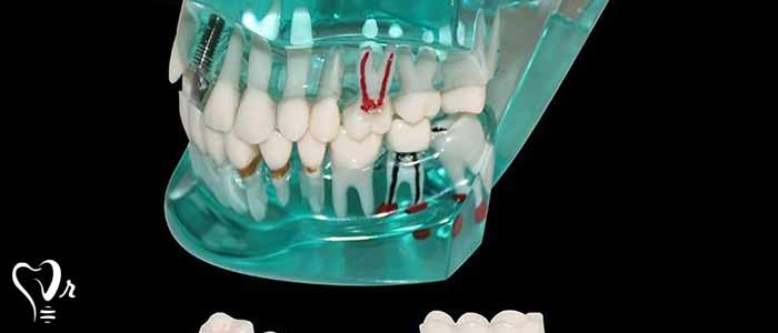 کاشت ایمپلنت دندان - نحوه کاشت ایمپلنت دندان