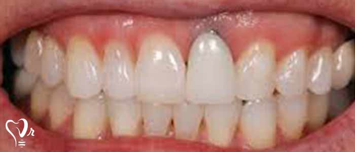 عوارض عدم استفاده از روش کاشت ایمپلنت دندان - پیوند استخوان