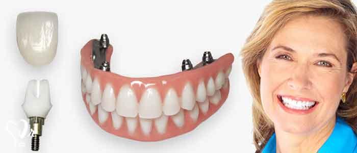 طول عمر ایمپلنت دندانی چقدر می باشد؟ - عمر ایمپلنت