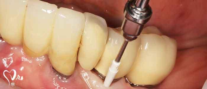 نکاتی در خصوص نگهداری ایمپلنت دندان - اطراف ایمپلنت دندان