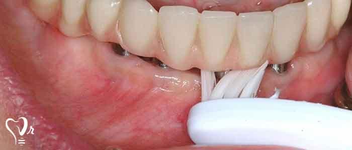 نکاتی در خصوص نگهداری ایمپلنت دندان - شکست ایمپلنت دندان
